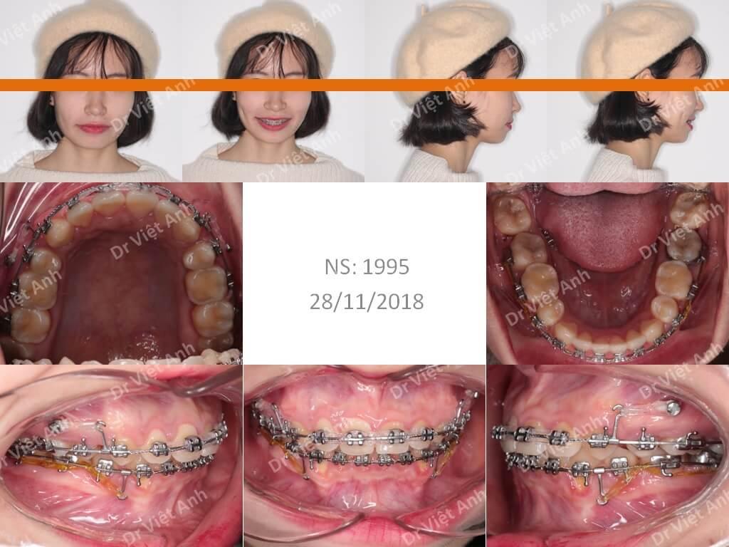 Niềng răng sinh viên Hà Nội 2