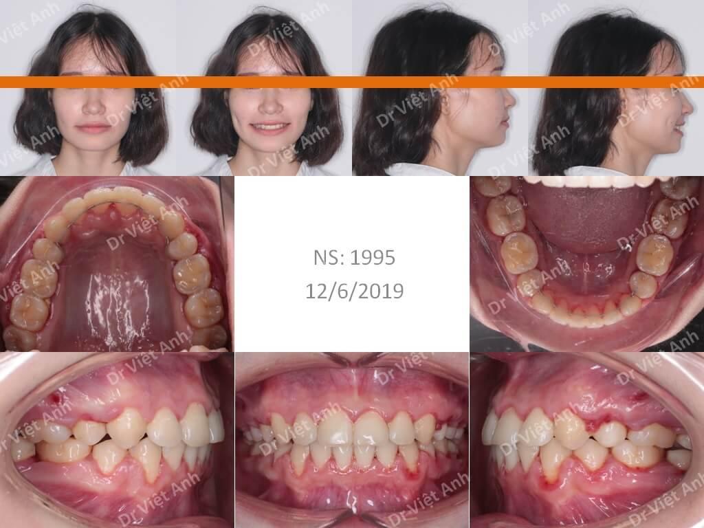Niềng răng sinh viên Hà Nội  1