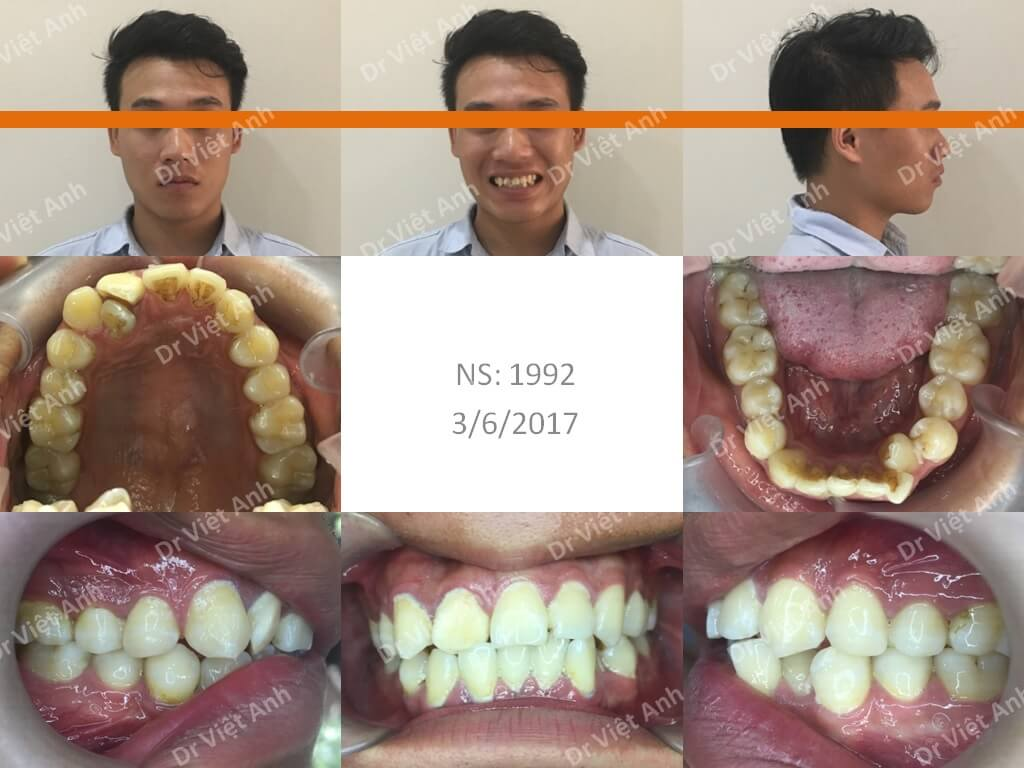 niềng răng bằng mắc cài pha lê 1