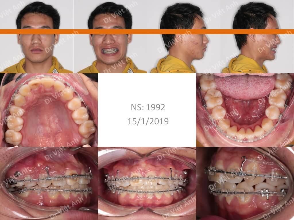 niềng răng bằng mắc cài pha lê