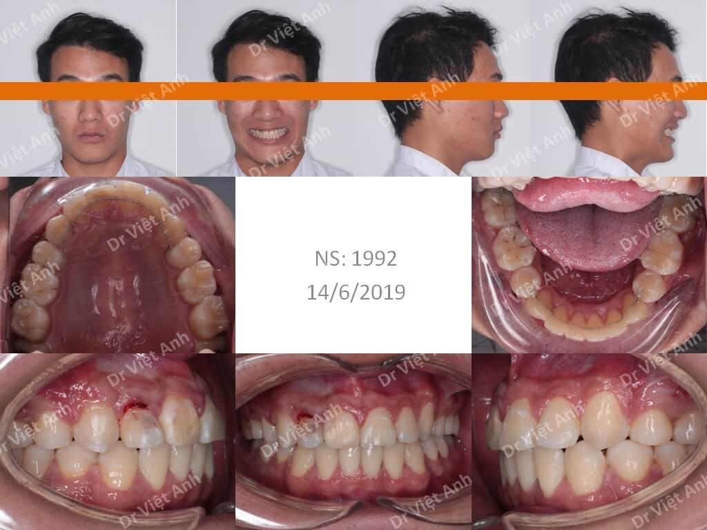 niềng răng bằng mắc cài pha lê, 2