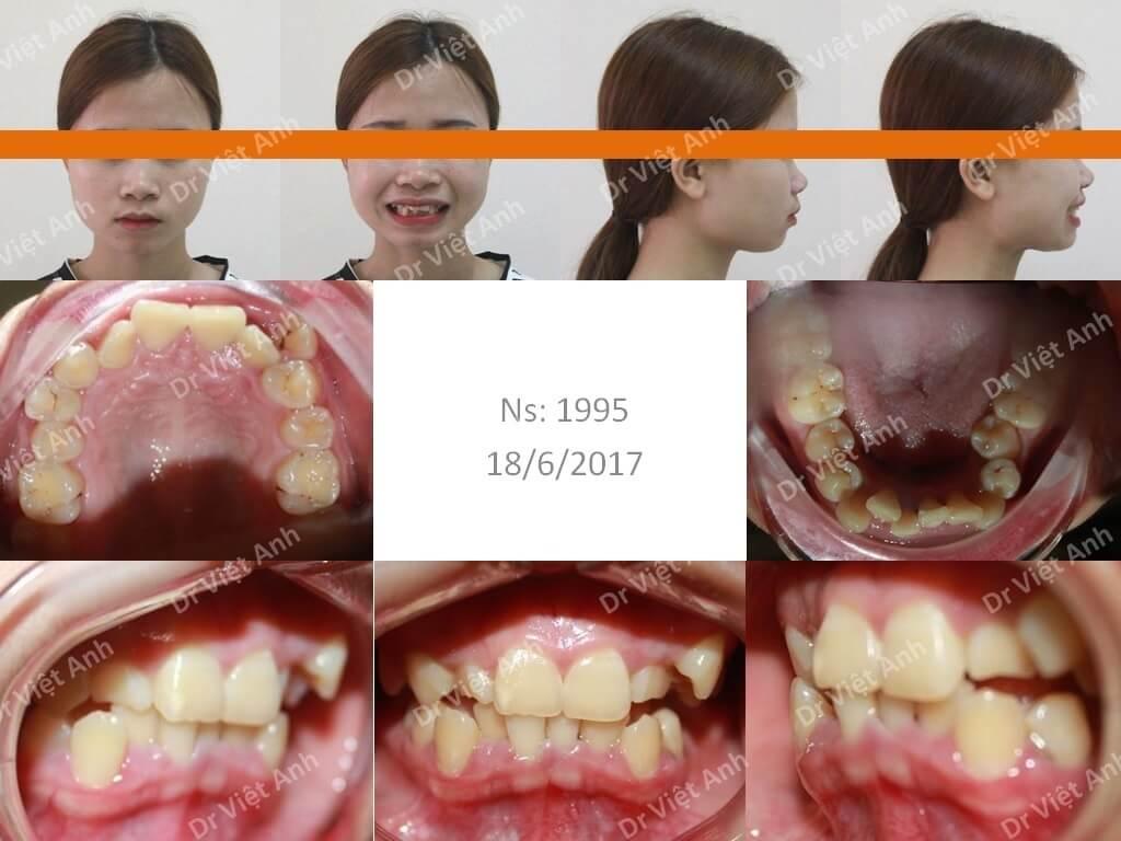Niềng răng siêu khấp khểnh - niềng răng sinh viên