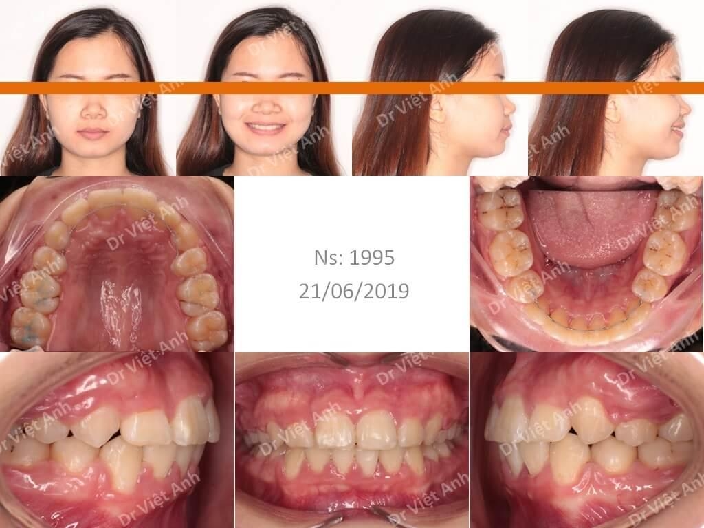 Niềng răng siêu khấp khểnh - niềng răng sinh viên 1