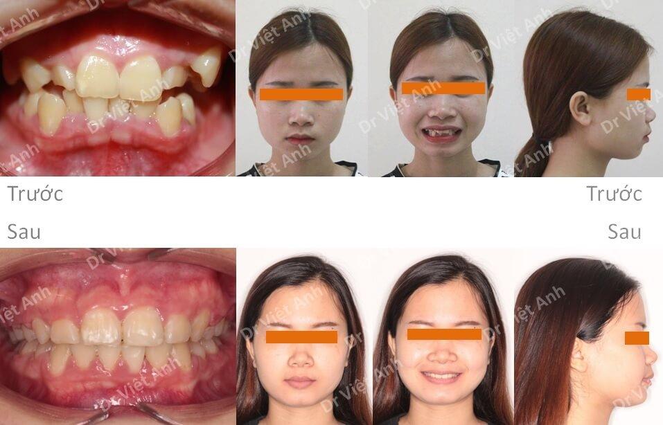 Niềng răng siêu khấp khểnh - niềng răng sinh viên 3