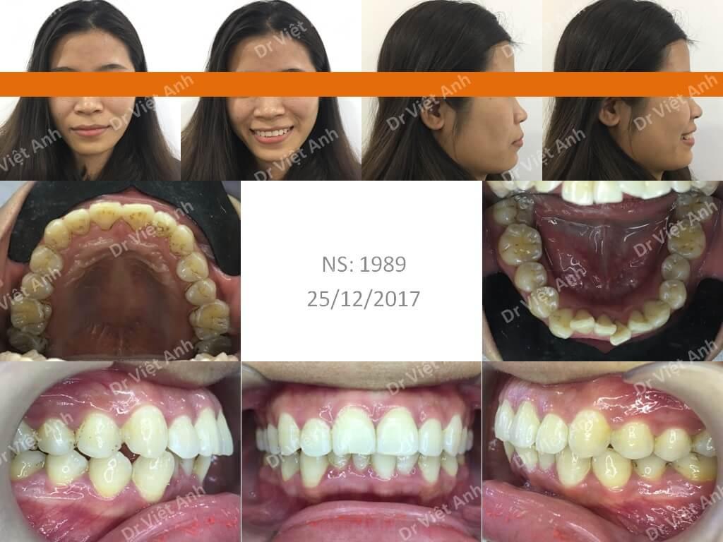 Niềng răng hô - niềng răng sinh viên