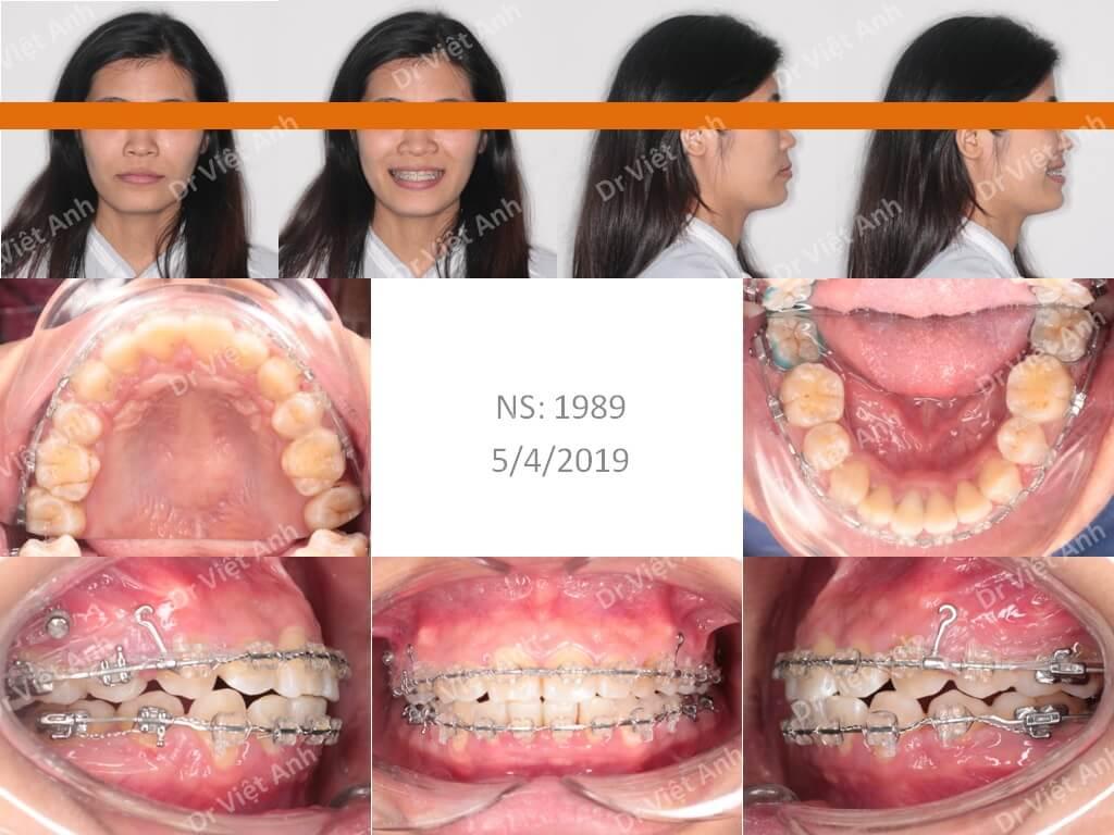 Niềng răng hô - niềng răng sinh viên 2