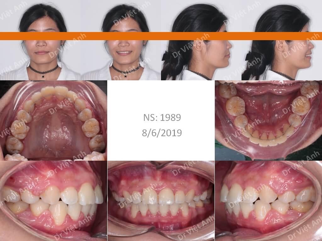 Niềng răng hô - niềng răng sinh viên 4