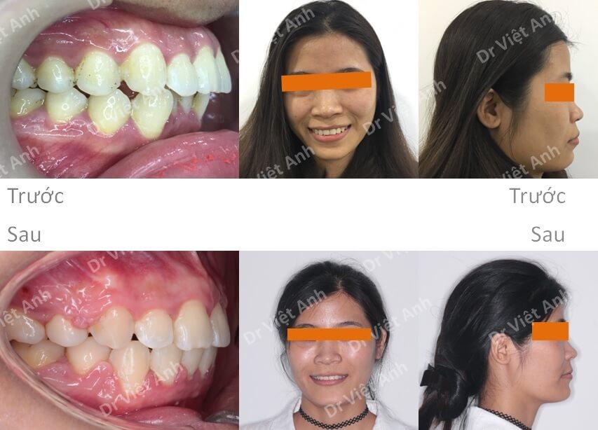 Niềng răng hô - niềng răng sinh viên 6