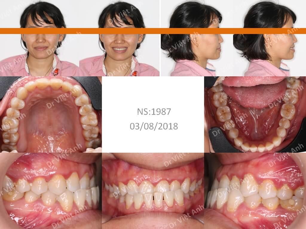 Niềng răng khớp cắn ngược thành công