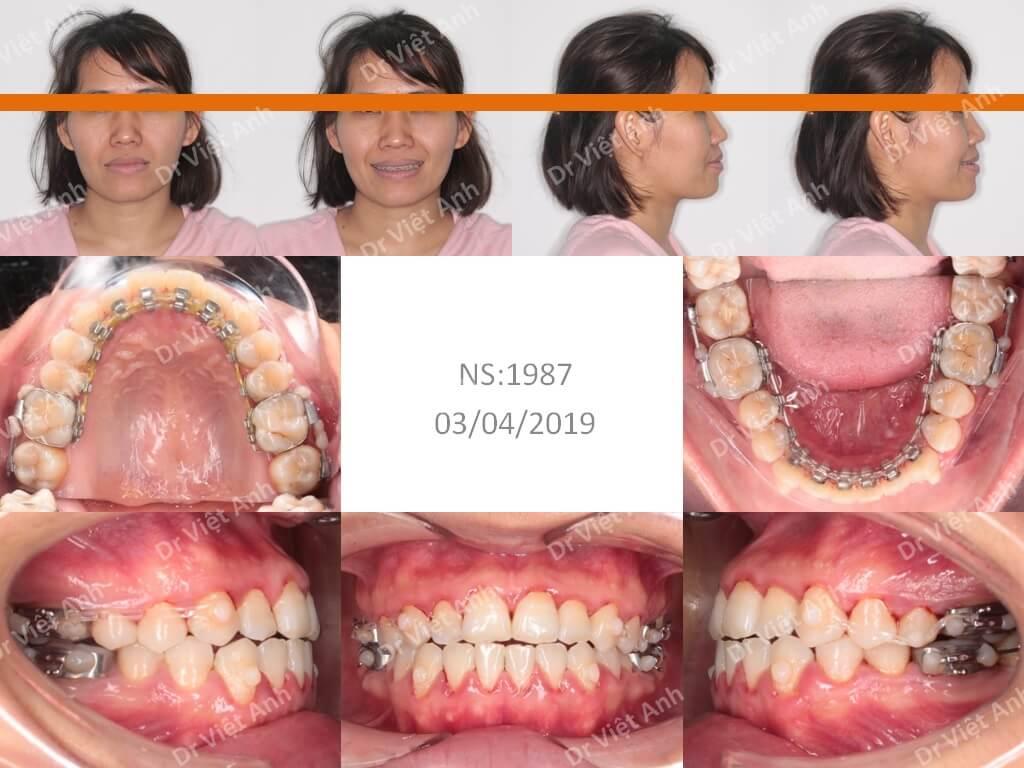 Niềng răng khớp cắn ngược thành công 1