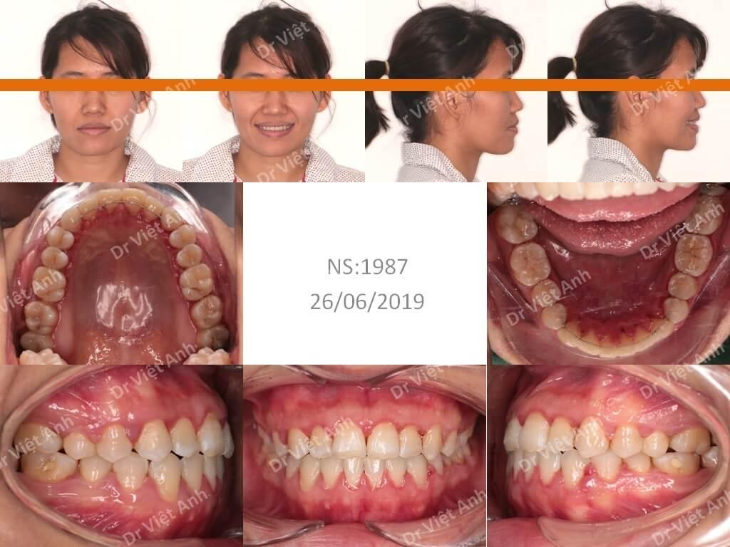 Niềng răng khớp cắn ngược thành công 3