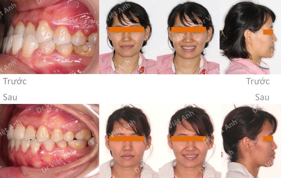 Niềng răng khớp cắn ngược thành công 4