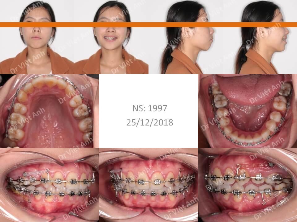 Niềng răng siêu khấp khểnh 1
