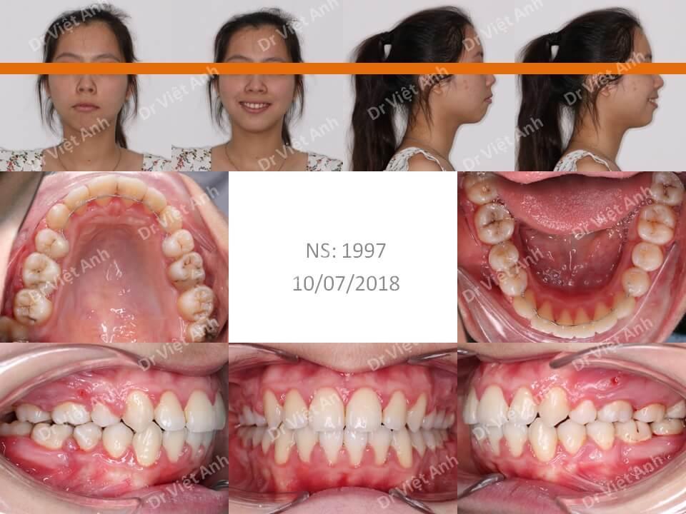 Niềng răng siêu khấp khểnh 2