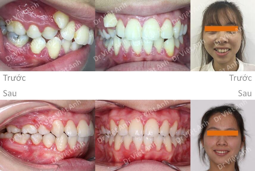 Niềng răng siêu khấp khểnh 4