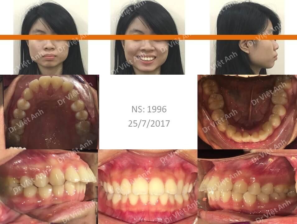 Niềng răng hô đạt góc nghiêng đẹp và khớp cắn chuẩn sau 2 năm