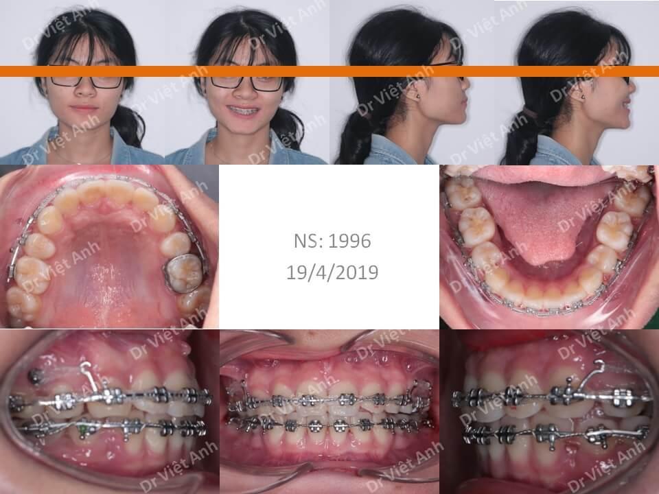 Niềng răng hô đạt góc nghiêng đẹp và khớp cắn chuẩn sau 2 năm 1