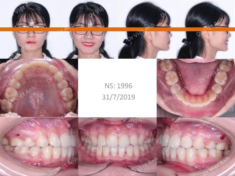 Niềng răng hô đạt góc nghiêng đẹp và khớp cắn chuẩn sau 2 năm 2
