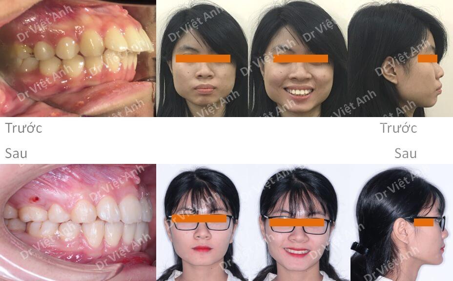 Niềng răng hô đạt góc nghiêng đẹp và khớp cắn chuẩn sau 2 năm 3