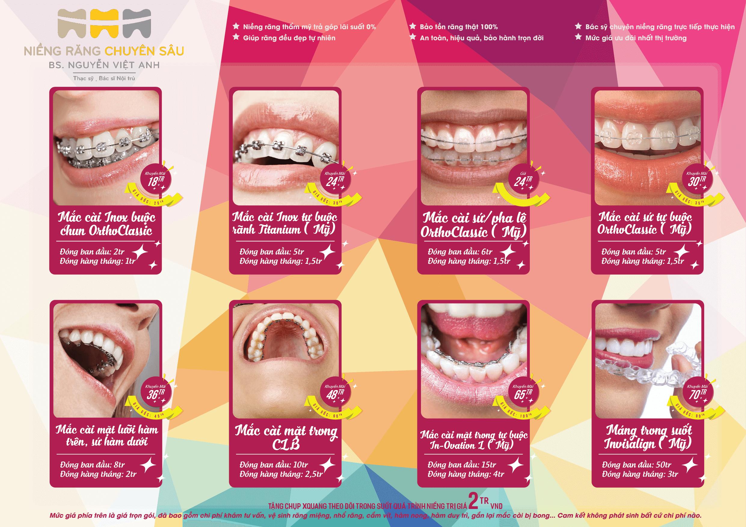 bảng giá niềng răng tại hà nội