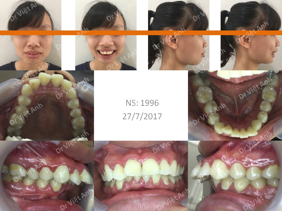 Ca niềng răng hô xương xuất sắc thay đổi 360 độ sau 2 năm