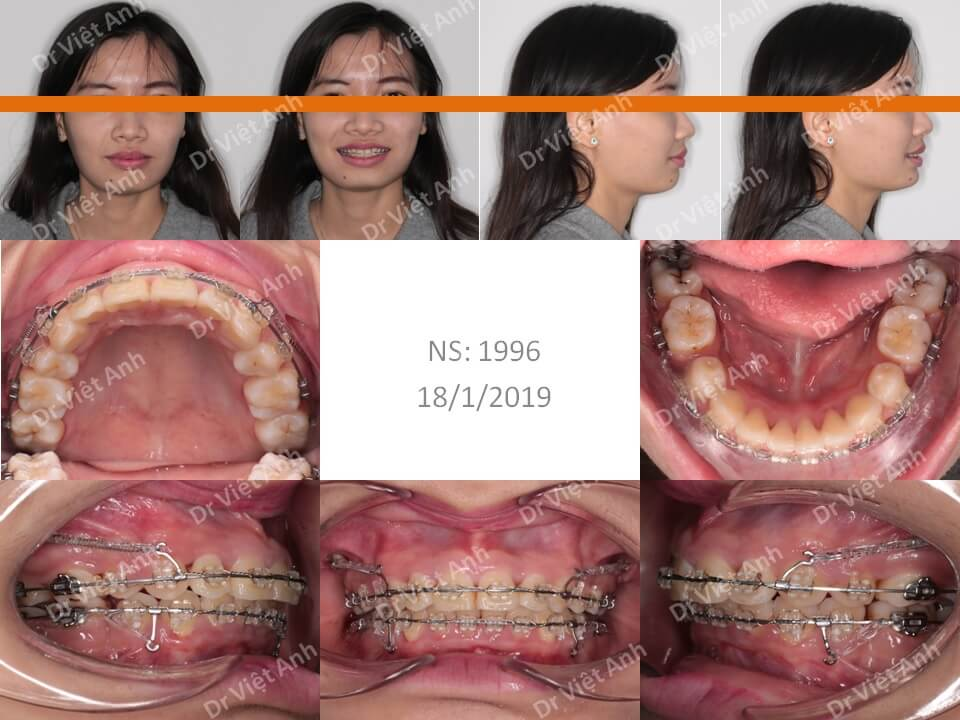 Ca niềng răng hô xương xuất sắc thay đổi 360 độ sau 2 năm 1