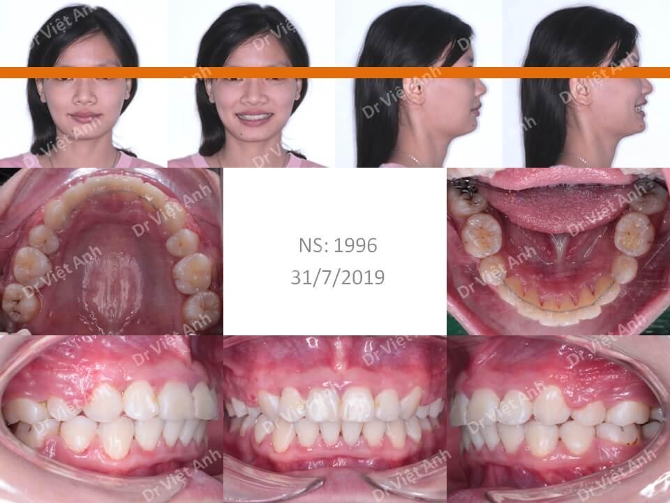 Ca niềng răng hô xương xuất sắc thay đổi 360 độ sau 2 năm 2