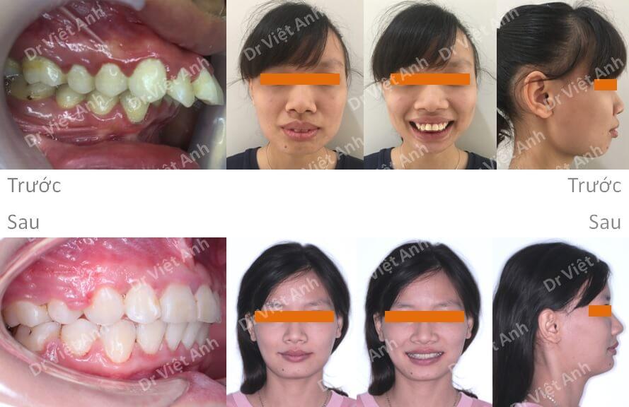 Ca niềng răng hô xương xuất sắc thay đổi 360 độ sau 2 năm 3