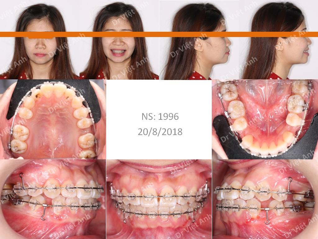 Niềng răng móm 1