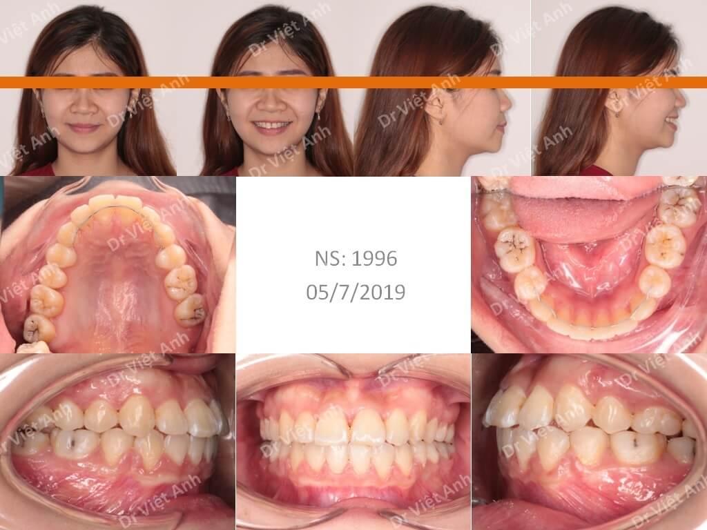 Niềng răng móm 3