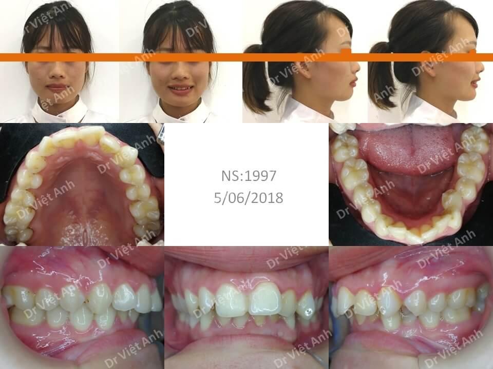 Niềng răng lộn xộn, hô hàm trên, khớp cắn sâu, không nhổ răng