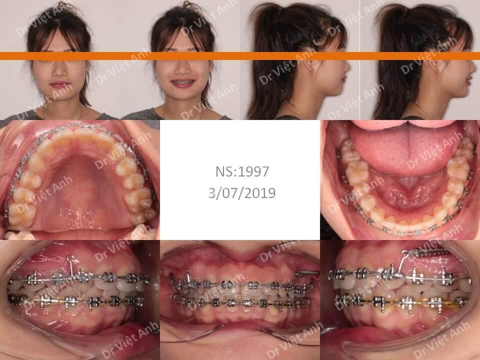 Niềng răng lộn xộn, hô hàm trên, khớp cắn sâu, không nhổ răng 1