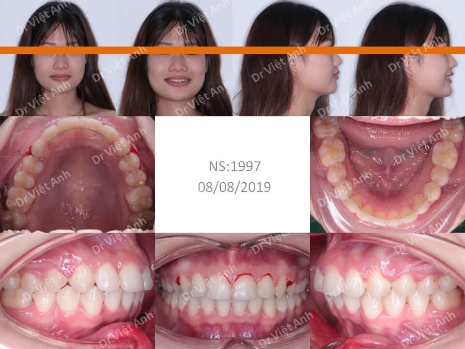 Niềng răng lộn xộn, hô hàm trên, khớp cắn sâu, không nhổ răng 2