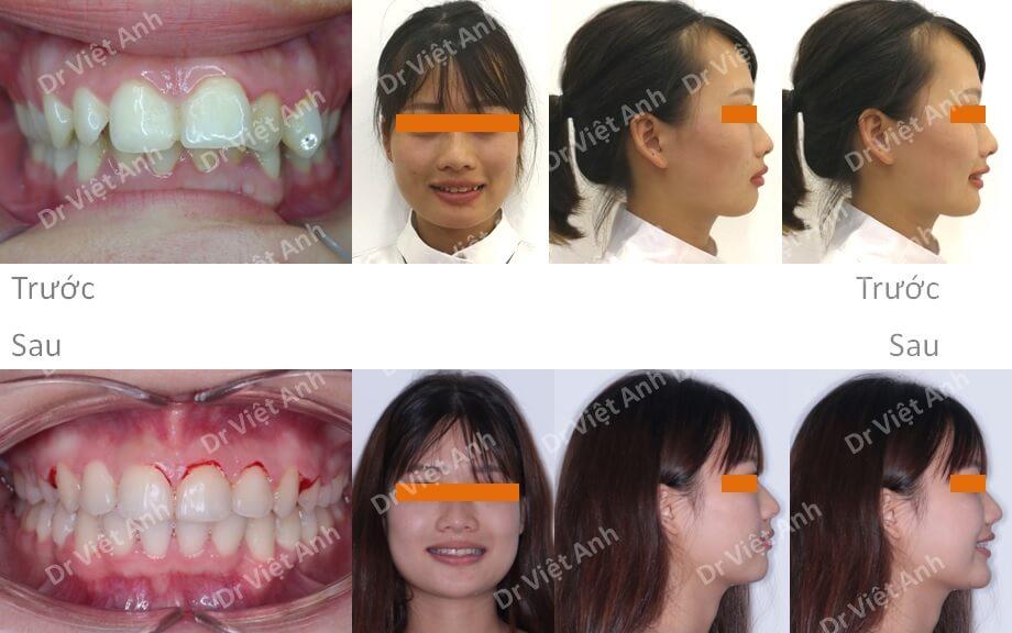 Niềng răng lộn xộn, hô hàm trên, khớp cắn sâu, không nhổ răng 3