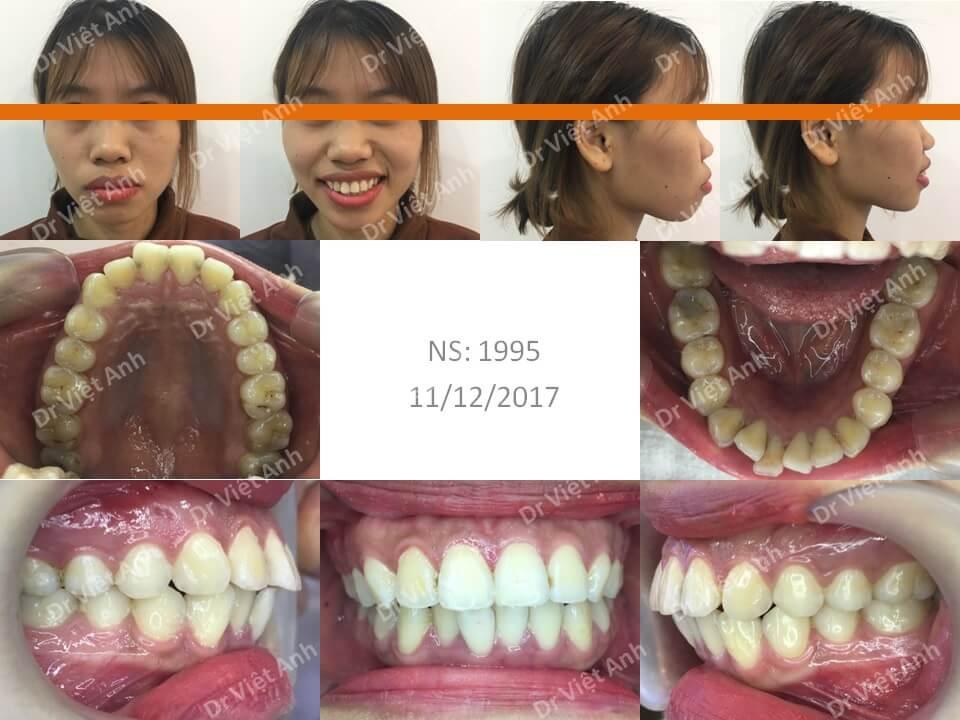 Niềng răng một ca hô cả xương và răng 1