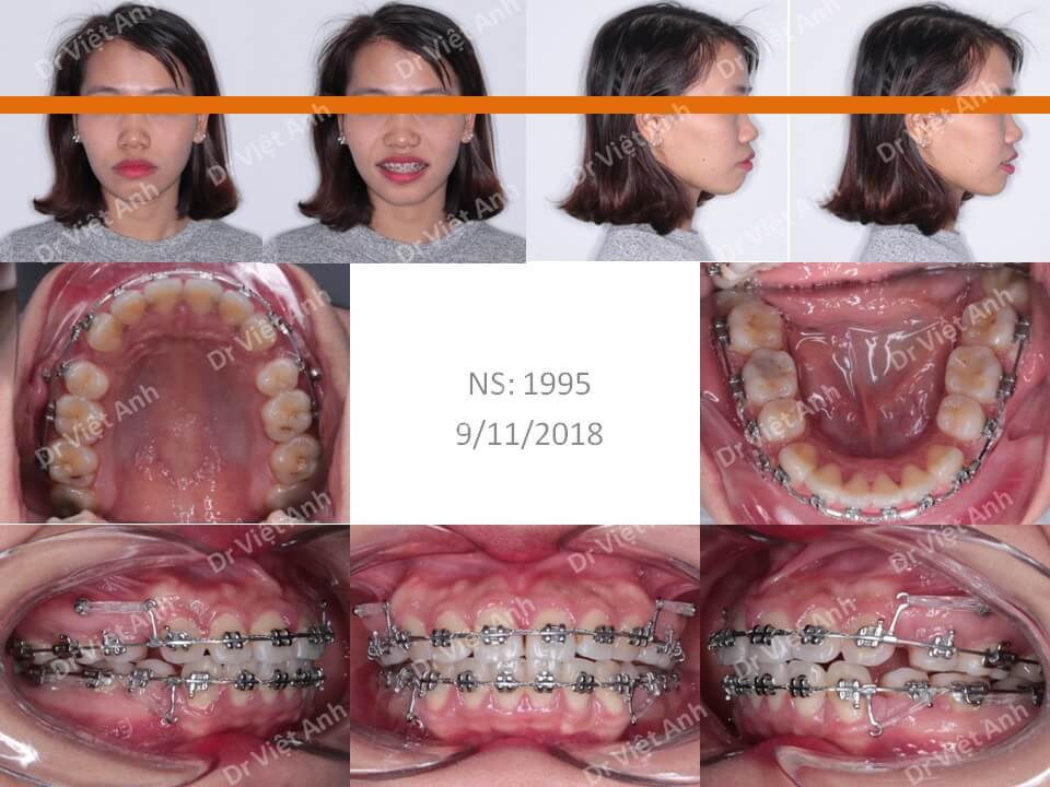 Niềng răng một ca hô cả xương và răng 2