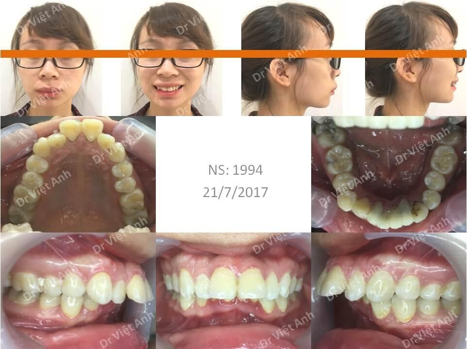 Niềng răng hô hàm trên nặng, khớp cắn rất sâu