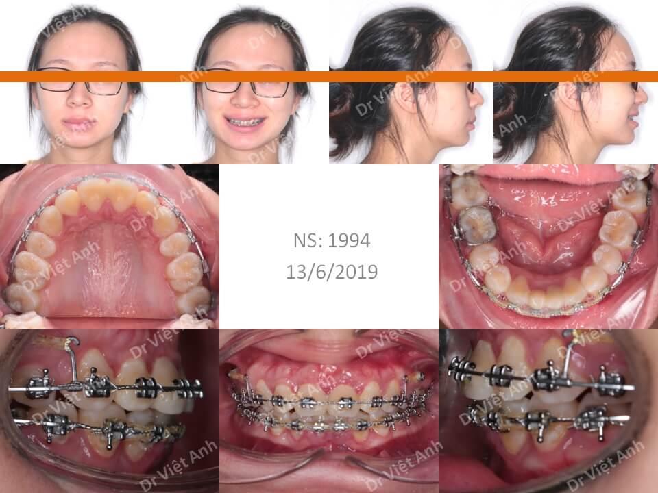 Niềng răng hô hàm trên nặng, khớp cắn rất sâu 1