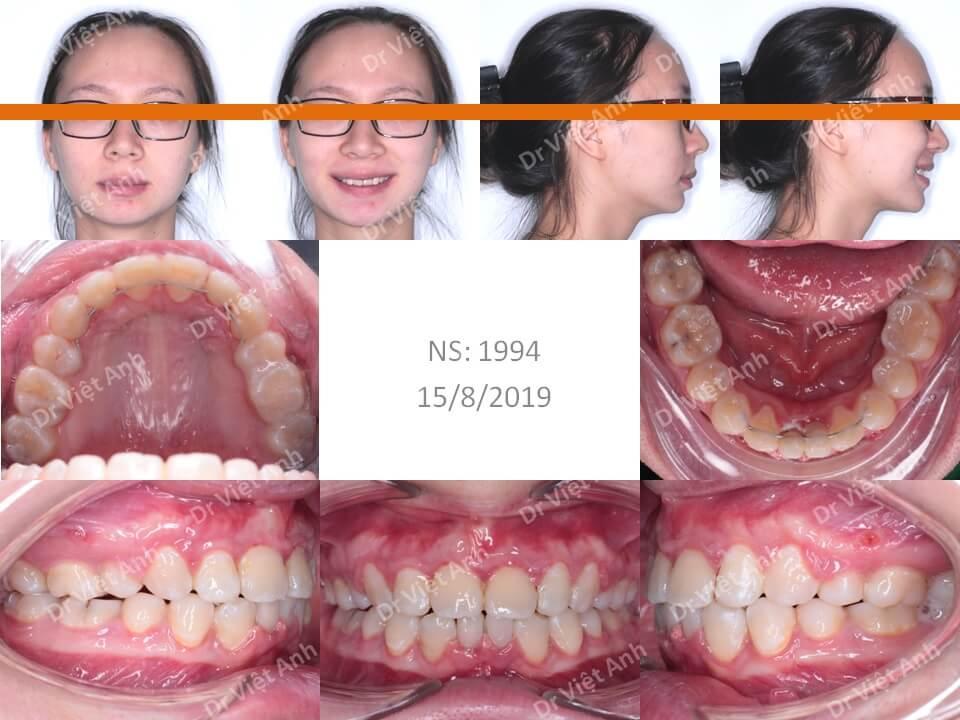 Niềng răng hô hàm trên nặng, khớp cắn rất sâu 2
