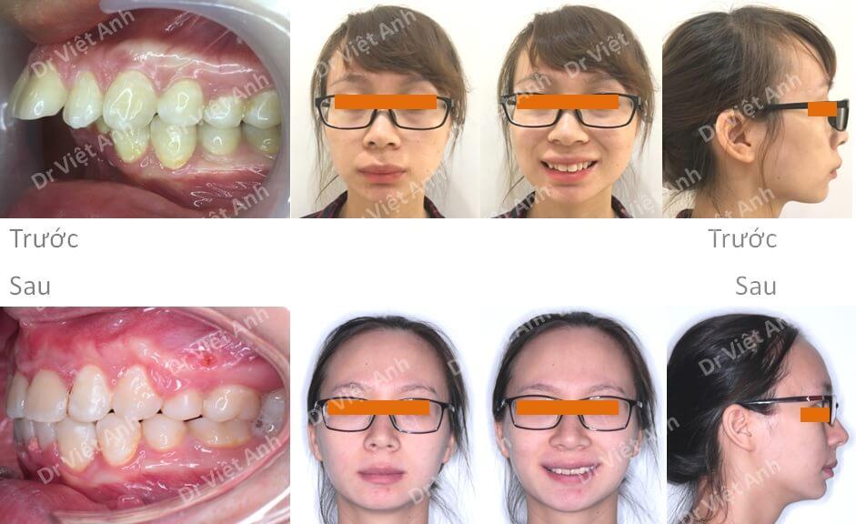 Niềng răng hô hàm trên nặng, khớp cắn rất sâu 3