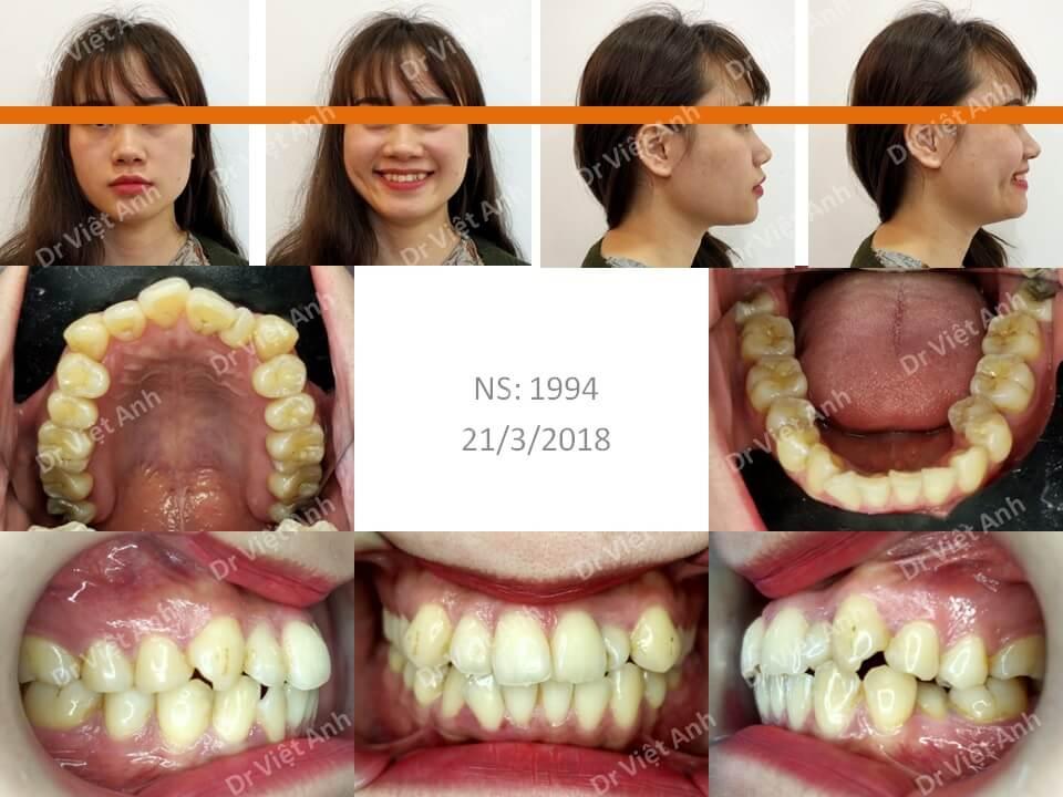 Niềng răng khấp khểnh nặng có nhổ răng hoàn thành sau 1,5 năm
