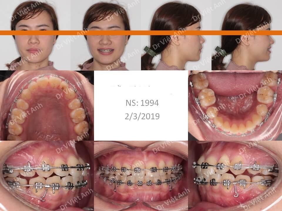 Niềng răng khấp khểnh nặng có nhổ răng hoàn thành sau 1,5 năm 2