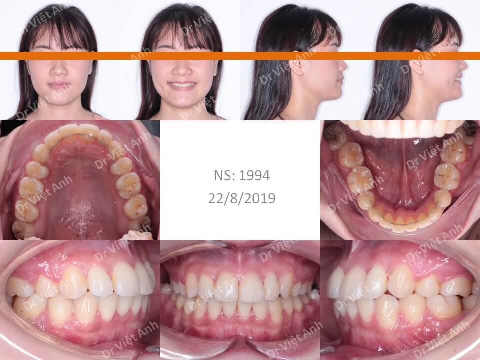 Niềng răng khấp khểnh nặng có nhổ răng hoàn thành sau 1,5 năm 1