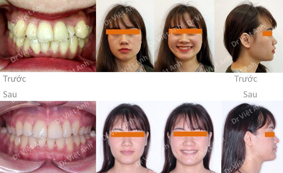 Niềng răng khấp khểnh nặng có nhổ răng hoàn thành sau 1,5 năm 4