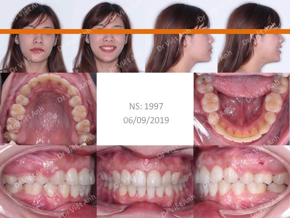 niềng răng hô cằm lẹm 2