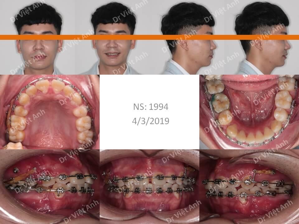 Niềng răng hô cho bạn nam 1