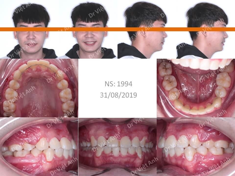 Niềng răng hô cho bạn nam 2