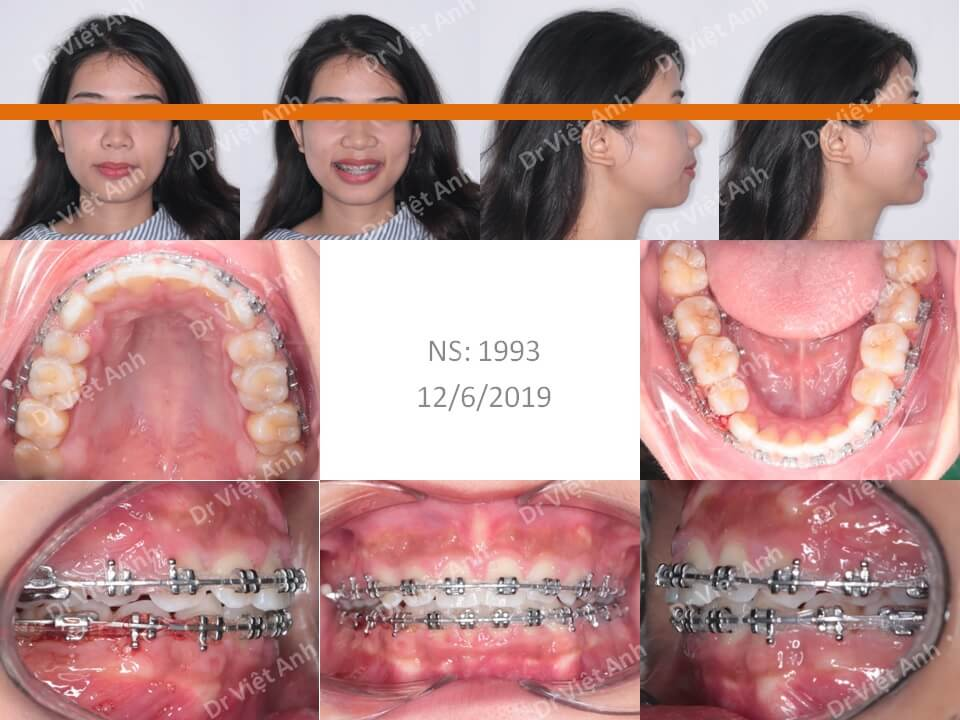 Niềng răng hô, thưa có nhổ răng 1