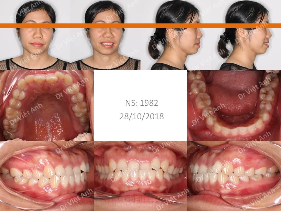 Niềng răng móm, khớp cắn ngược cho khách hàng 36 tuổi