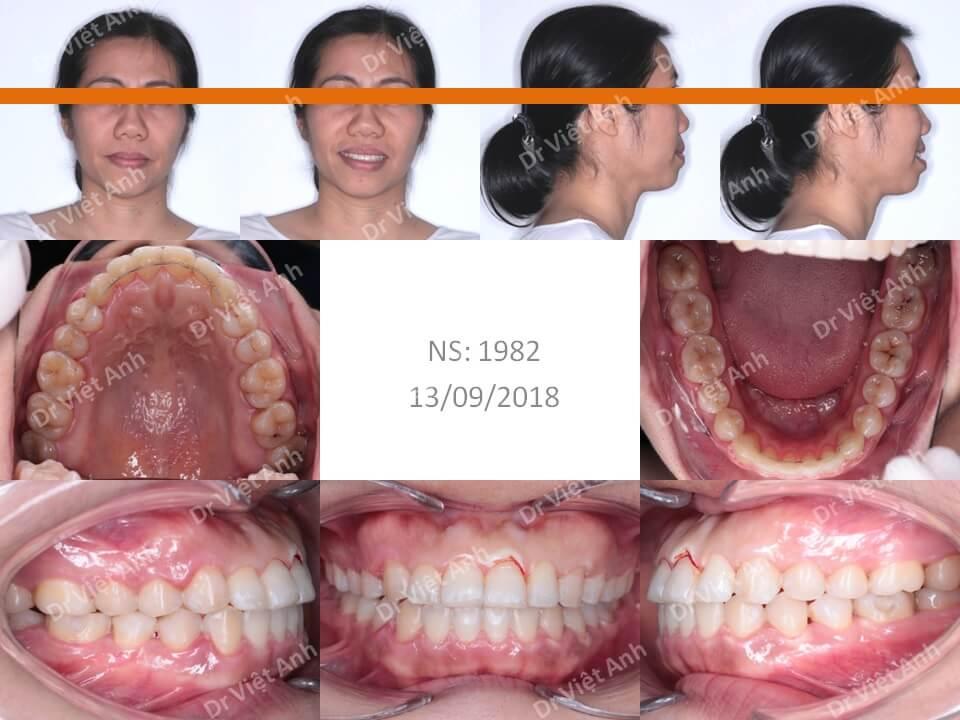 Niềng răng móm, khớp cắn ngược cho khách hàng 36 tuổi 1